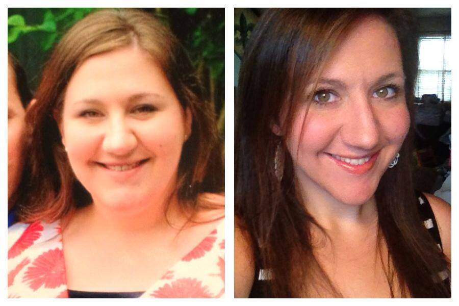 FACE BEFORE AND AFTER WEIGHT LOSS - burmes fede